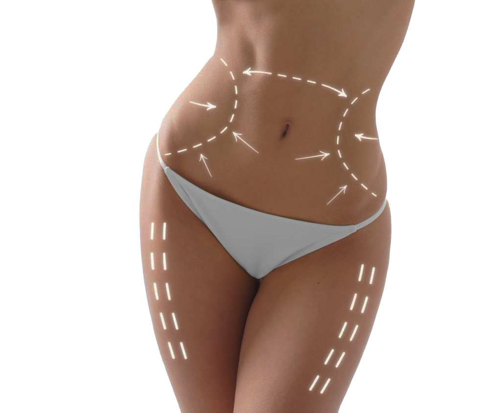 contorno corporal - Cirurgia Plástica em Passo Fundo - RS